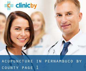 Acupuncture in Pernambuco by County - page 1